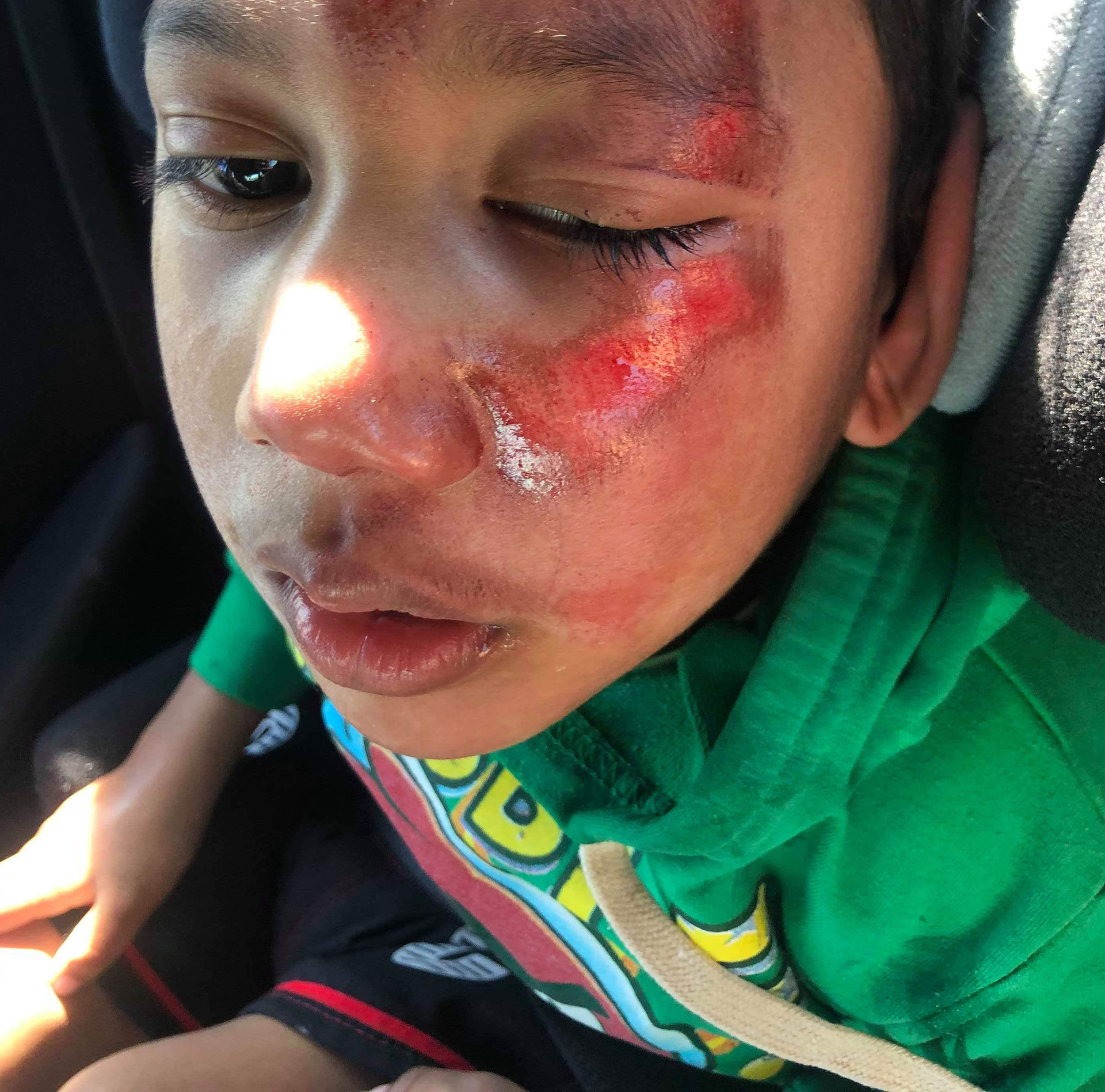 Boy, 4, with cerebral palsy suffers horrific injuries at kindy