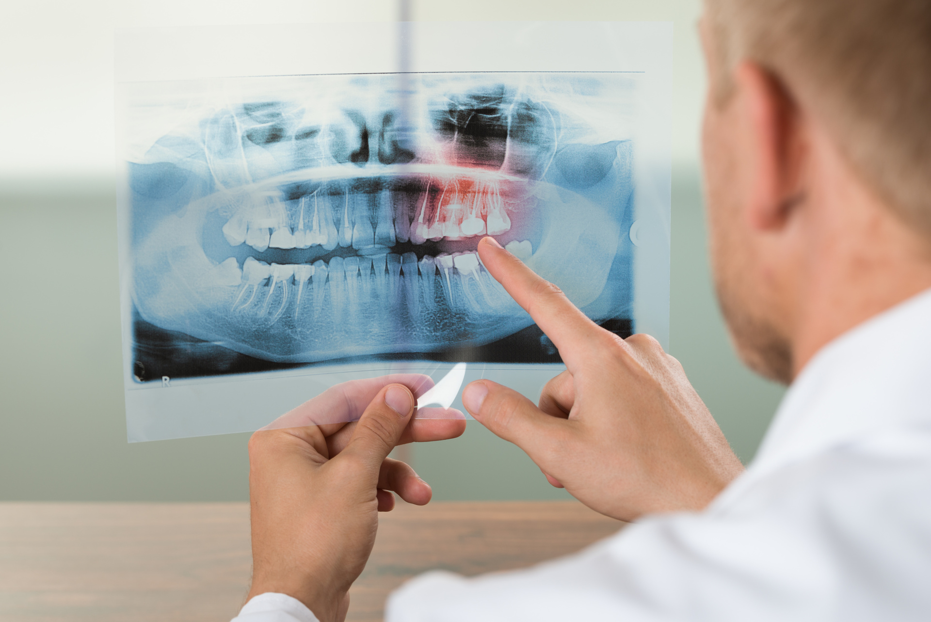Dentist breached health code after performing a root canal on the wrong tooth