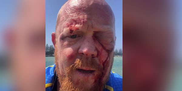 Paramedic 'bashed by kids' during charity bike ride