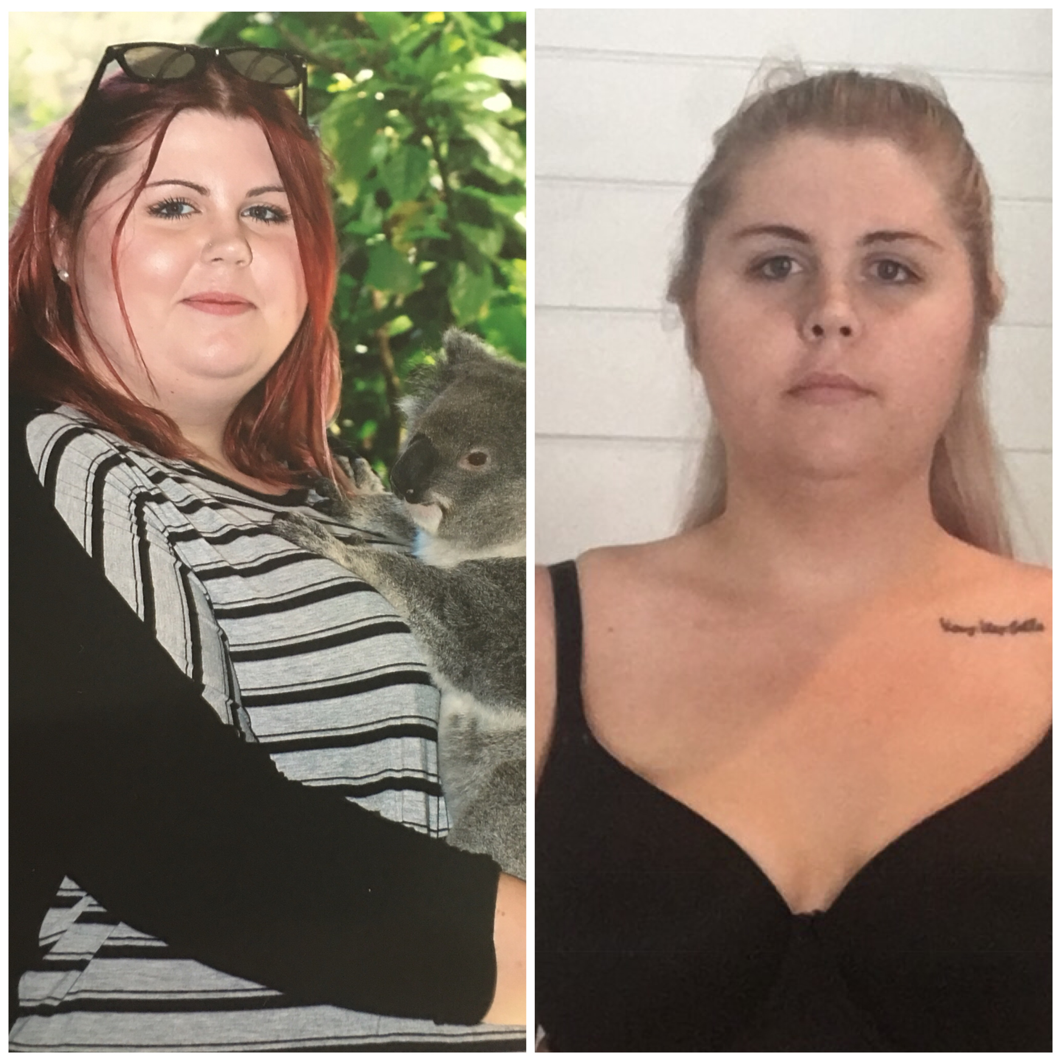 Weight Loss Surgery Not The Easy Option But Worth It Says Patient