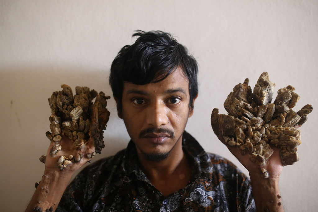 Bangladesh's 'tree man' begs doctors to amputate his hands