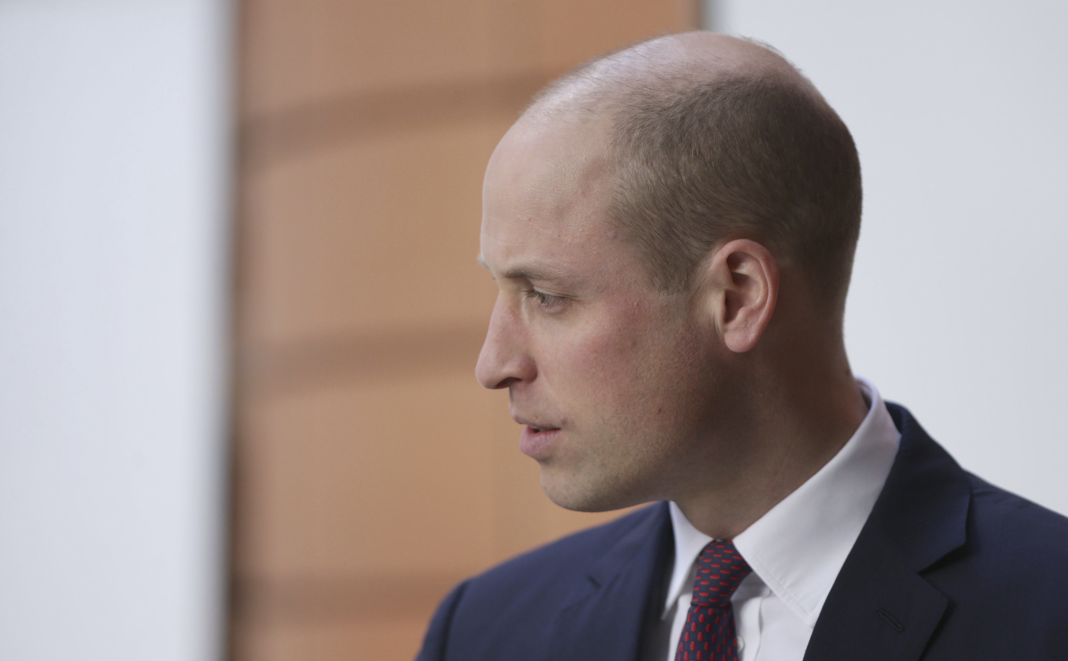 Dustin Hoffman Hair Plugs >> What Prince William Could Have Done Instead Of Shaving His Head Nz