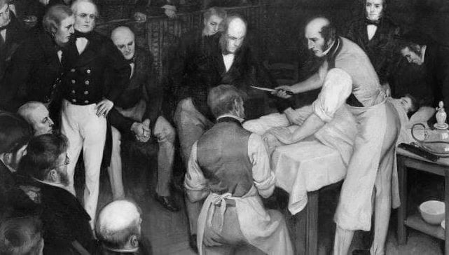 Terror of the 19th century operating table: No drugs and patients were fully awake