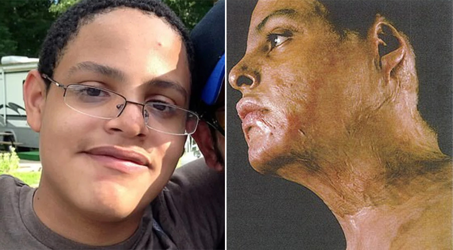 Student left badly burned in chemistry experiment gone wrong awarded $60m